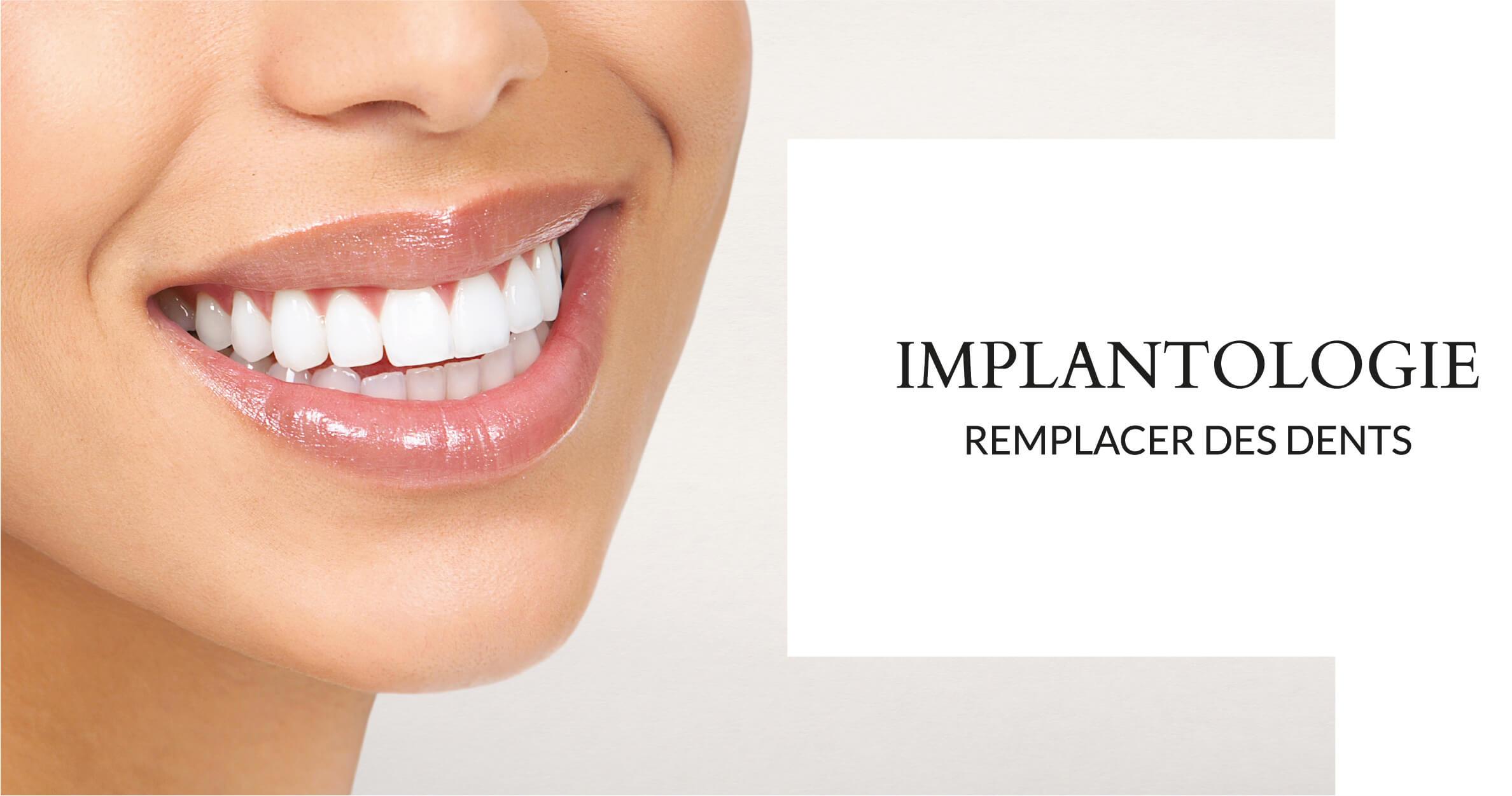 Implantologie - Cabinet dentaire du Dr Ludovic Ache Paris 16