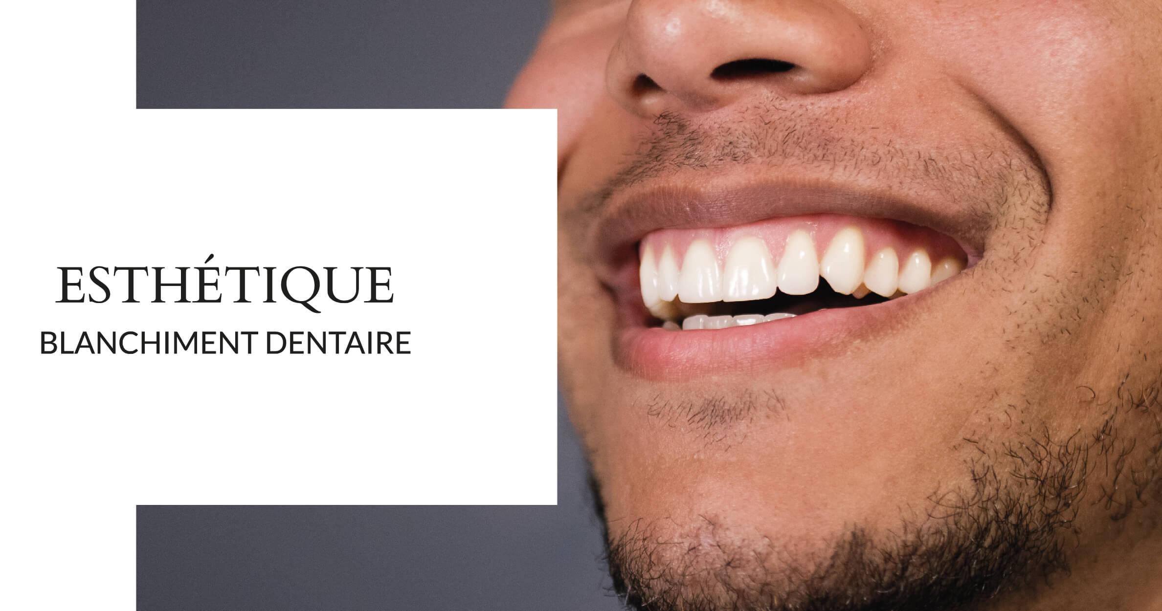 Blanchiment dentaire - Cabinet dentaire du Dr Ludovic Ache Paris 16