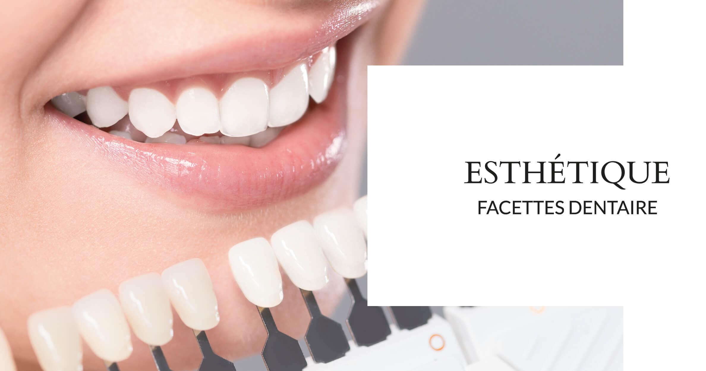 Facettes dentaire - Cabinet dentaire du Dr Ludovic Ache Paris 16